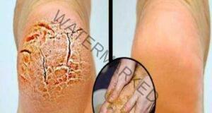 Върнете красотата на краката си: Лек срещу напукани пети