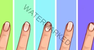 Каквито нокти имате, такова е вашето здраве! Проверете себе си!