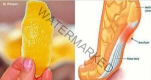 Лимонът и неговата кора ще ви отърват от болките в ставите