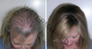 Това масло е невероятно за растеж на косата, миглите и веждите