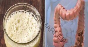 Трите най-добри начина да изчистите от червата 5 килограма токсини