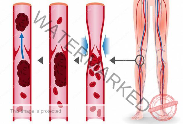 8 продукта, които разреждат кръвта и предотвратяват тромбоза