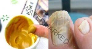 Ето как бързо и лесно да преборите микозата на ноктите