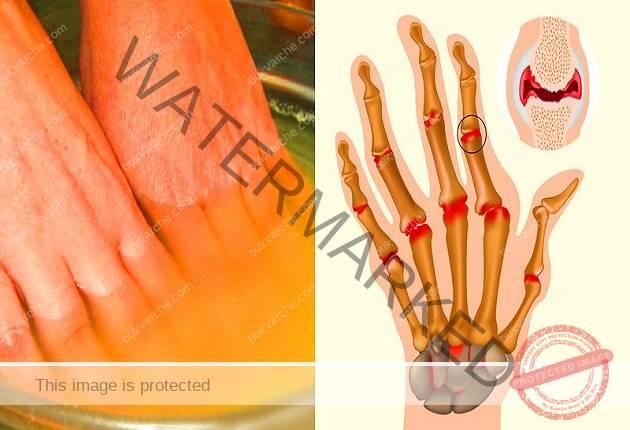 Артрит на ръцете и пръстите: лечение с народни средства   Болки в ставите