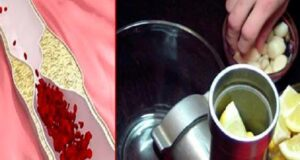 Чисти кръвоносни съдове с 1 лъжица от тази смес на празен стомах