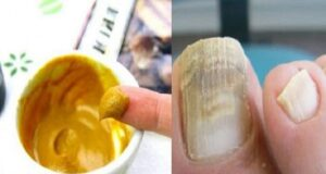 Ето как да се отървете от гъбичките по ноктите бързо и завинаги
