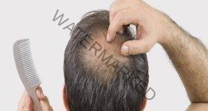Косата и миглите ви падат? Този лек възстановява фоликулите