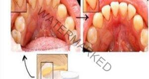 Отървете се от зъбната плака и зъбния камък по естествен начин!