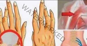 Стойте далеч от тези 7 продукта, ако страдате от ревматоиден артрит!