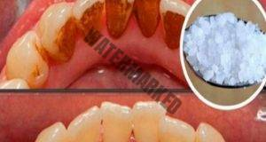 Ето как да се отървете от зъбния камък без помощта на зъболекар