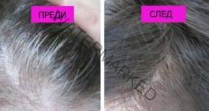 Забравете за сивата коса, като използвате това средство
