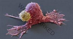 Ракът умира, когато ядете редовно тези 5 продукта