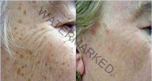 Средство за премахване на всички кафяви петна по кожата