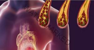 Ето как да предпазите артериите си от запушване