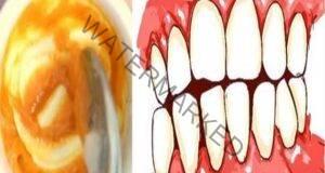 Направете си домашна паста за здрави и бели зъби!