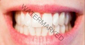 Отвара от орехови черупки за отстраняване на зъбния камък