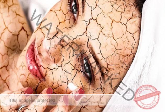 Симптоми на дехидратация, които тялото ви може да изпита