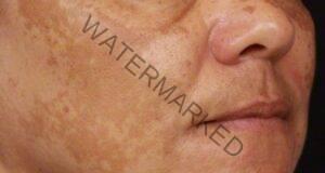 Тъмните петна по лицето ви ще изчезнат с тези 2 съставки