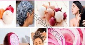 Ако искате здрава и гъста коса, използвайте лук и картофи!