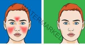Домашни средства за кожата на лицето, които са много ефективни