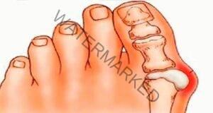 Изпъкнали кости на краката: 4 продукта, които ще ви помогнат