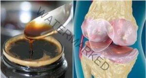 Натурално средство за укрепване на костите и ставите