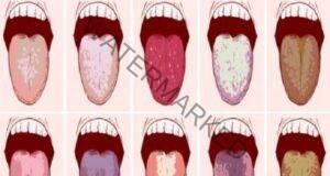 Неприятен вкус в устата сутрин: Действайте незабавно!