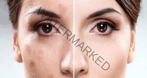 Природни средства за премахване на тъмните петна по лицето