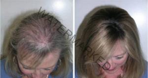 Рициновото масло ще ви помогне за бърз растеж на косата