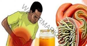 Природен антибиотик: Лекува всяка инфекция и убива паразитите