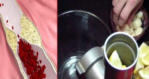 Рецепта от 3 съставки за почистване на кръвоносните съдове