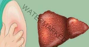 Това са двете най-добри средства за лечение на черния дроб