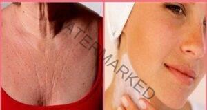 4 съставки, които подмладяват кожата на шията и деколтето