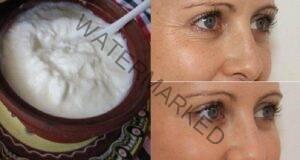 Маска за лице за дълготрайно премахване на бръчките