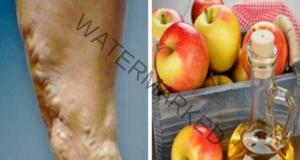 Народно средство за лечение на варикоза и тромбоза