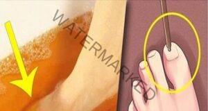 Отървете се от гъбичките по ноктите с помощта на йод!