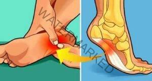 Премахнете болката в петата с няколко ефективни народни средства