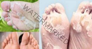 Ето как да се отървете от напуканите пети и сухата кожа