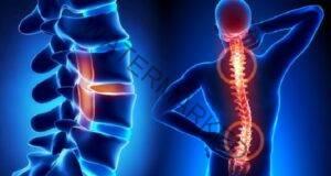 Как остеохондрозата е свързана с общото здравословно състояние?