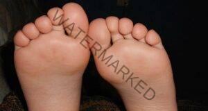 Разтвор с ябълков оцет при болка в стъпалата и гъбички по ноктите