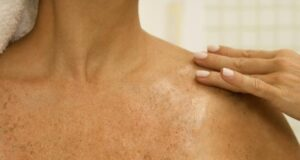 Това средство премахва петната и хиперпигментацията на кожата