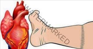 4 признака на сърдечен пристъп, които не бива да пренебрегвате