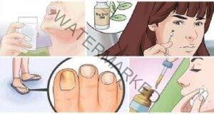 5 приложения на маслото от чаено дърво за вашето здраве