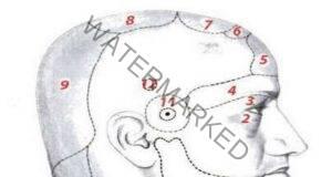 Вижте какво означава главоболието според това къде ви боли!