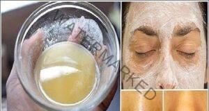 Ефикасна маска срещу бръчки, акне и пигментни петна
