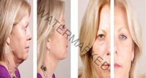 За тонизирана кожа на лицето и стегнат овал, използвайте този метод!