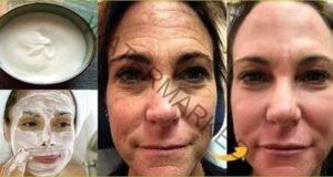 Маска срещу дълбоки бръчки: Действайте незабавно!