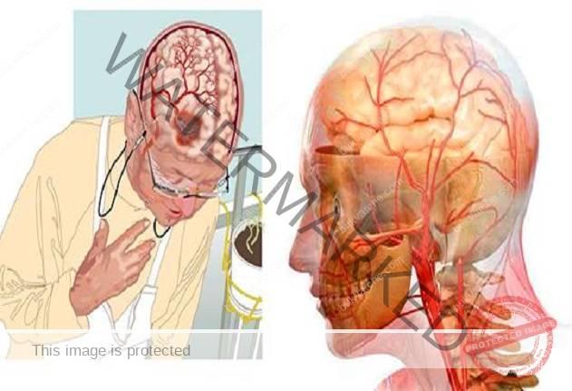 Най-мощните рецепти за подобряване на кръвообращението в мозъка