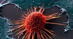 Ракът не е заболяване, а липса на витамин В17!