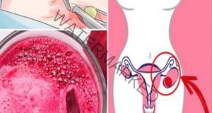 Когато моят гинеколог ми откри киста, се отървах от нея за 4 дни
